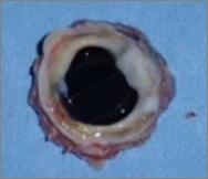 Cas clinique : Vue opératoire du pannus